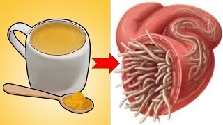 Natural Ways To Get Rid Of Intestinal Worms In No Time