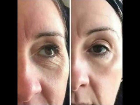 Tipis untuk menghilangkan kerutan di bawah mata