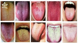 What Your Tongue Has to Say About Your Health