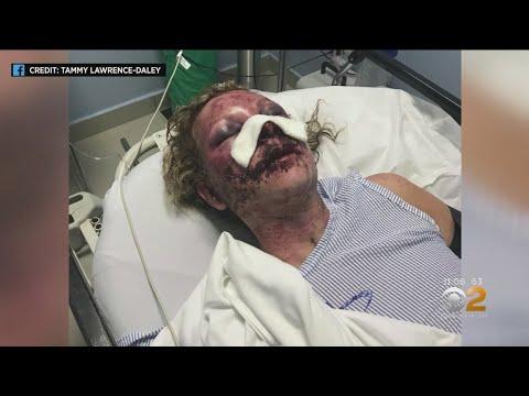 Delaware Woman Brutally Beaten In Dominican Republic - YouTube