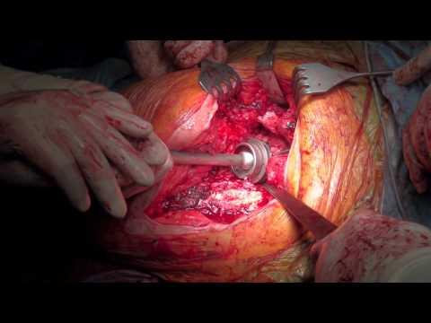 Tabletki lędźwiowego martwica kostno-chrzęstna