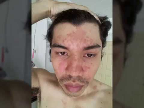 Neurodermatitis รักษา Belokuriha