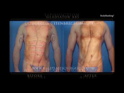 Male Liposuction in Los Angeles with Plastic Surgeon Dr. Douglas Steinbrech