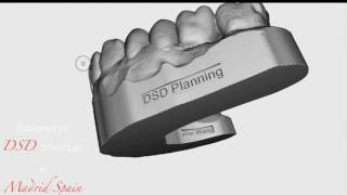 DSD 3D Work up to Mock up