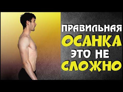 Сколиоз позвоночника упражнения фото