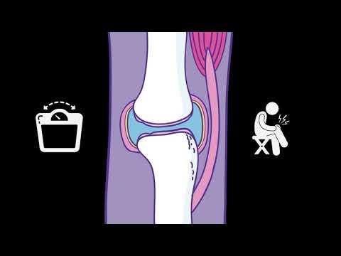 Ízületi fájdalom sportolók gyógyszerek