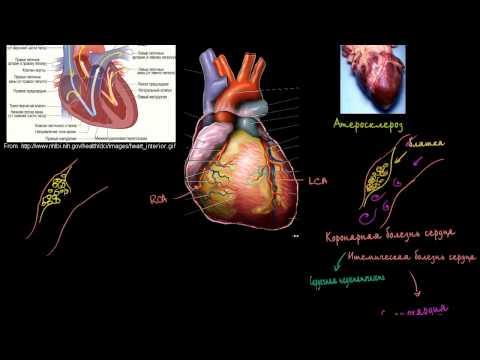 Гипертония головокружение и рвота