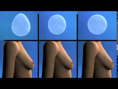 Los aceites cosméticos para el aumento del pecho