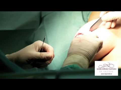 Chirurgia klatki piersiowej lejek