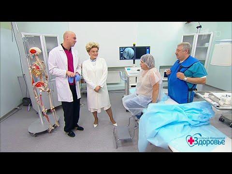 Гирудотерапия при остеохондрозе видео