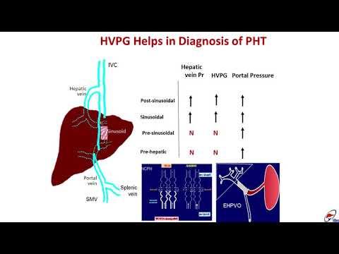 Ziele für Hypertension