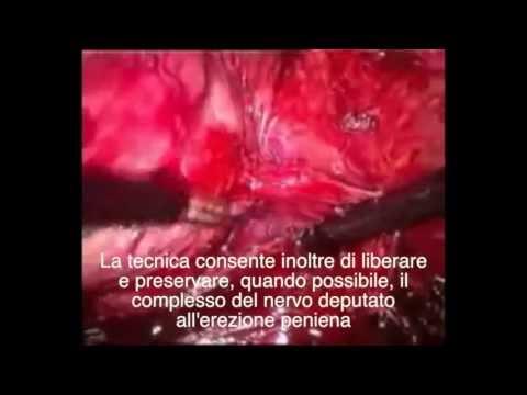 Cibo in uninfiammazione della prostata adenoma