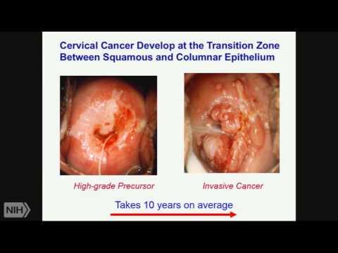 TRACO 2015: Cervical Cancer - Non-Small Cell Lung Cancer