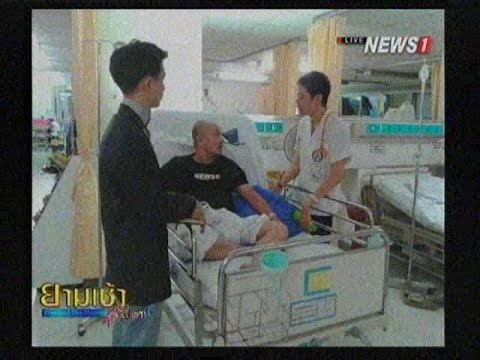 การรักษา thrombophlebitis pradaksa