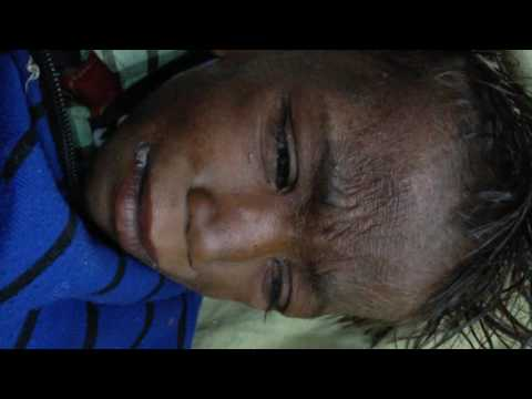 Video clinical video of kwashiorkor
