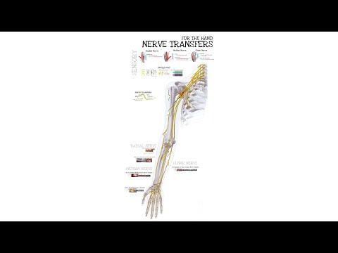 Przeniesienie (transfer) nerwów czuciowych zaopatrujących rękę