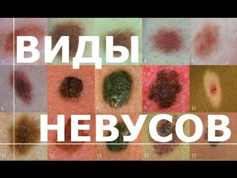 Веснушки детский центр киев