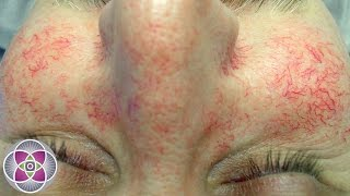 How to Get Rid of Spider Veins and Red Veins on the Face