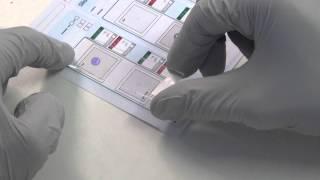2.  Array CGH for PGD:  Hybridisation