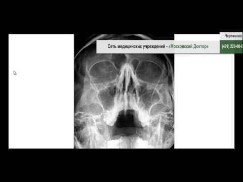 Остеохондроз с корешковым синдромом пояснично-крестцового отдела позвоночника