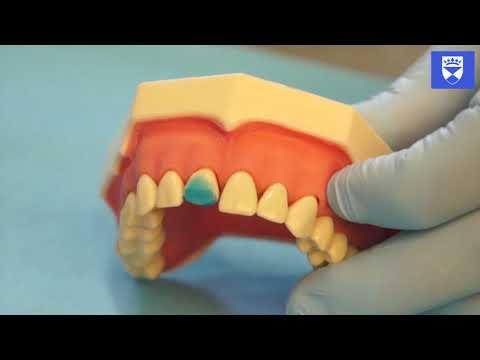 Odbudowa przedniego zęba przy użyciu kompozytu i formówki. Część 2: kształtka