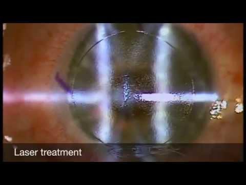 Hogyan lehet meggyógyítani a rövidlátást műtét nélkül
