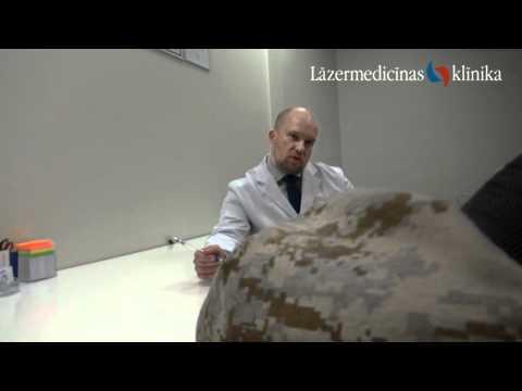 Akūts asas sāpes vēderā prostatīts