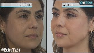 How to Get a Quick Face-Lift Without Surgery