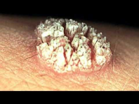 Hpv warts on tongue pictures