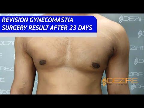 Cauze ale osteochondrozei articulației umărului