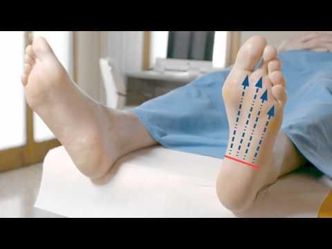 Crema contro varicosity di gambe