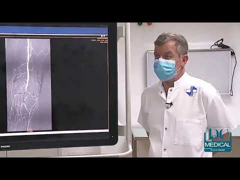 Ce vindecă artrita piciorului