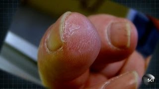 How to Grow a New Fingertip | World's Strangest