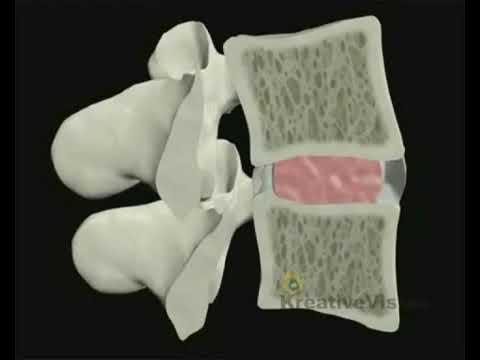 Rano w pozycji leżącej ból pleców