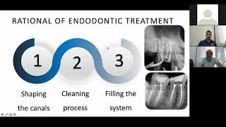 Cleaning and filling the root canal system, dr. Marc Habib and dr. Marc Kaloustian