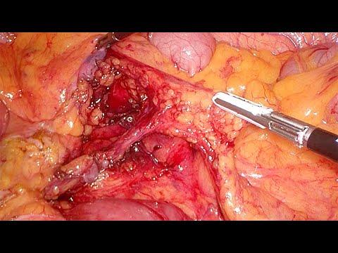 Tętnica Moskowitza i mobilizacja zagięcia śledzionowego - laparoskopowa resekcja esicy