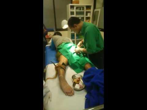 Video Operasi Uci uci