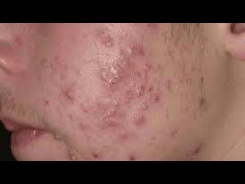 Video dan mp3 Super Satisfying Blackhead Amp Pimple Removed