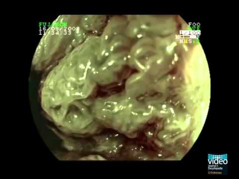 Peritoneal cancer lymph nodes