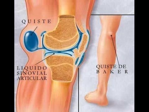 Estiramiento de la articulación de la rodilla en perros. tratamiento