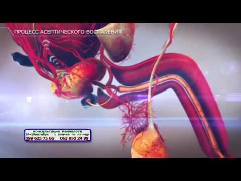 Ихтиол при аденоме простаты