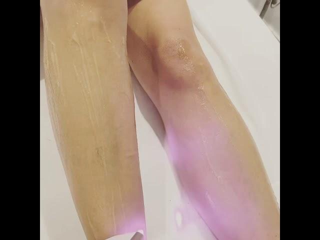 Diode laser voorbeen ontharing