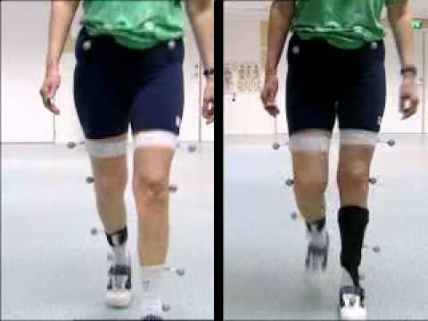 Phillips benda sul video caviglia