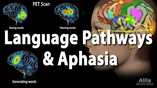 Language Pathways and Aphasia, Animation