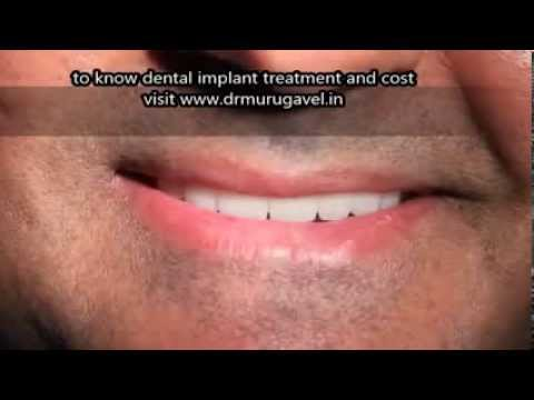 Are Diabetic patients suitable for dental implants   YES you ARE!!