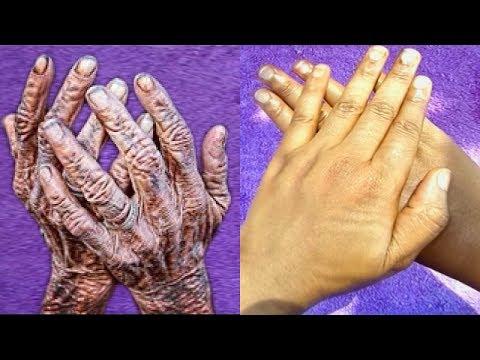 Cream Clarens kamay ng pigment spots