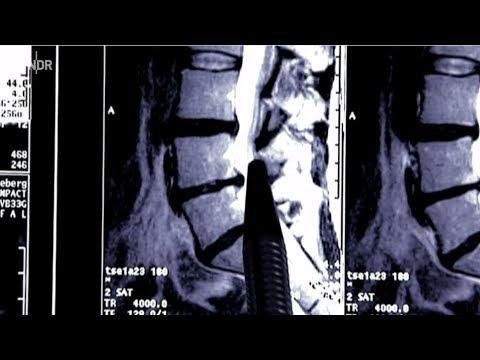 Der Schmerz im linken unteren Bereich des Rückens bei den Frauen