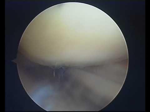 Dolori a varicosity di una piccola pelvi a gravidanza