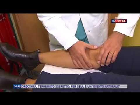 Allergia per le articolazioni