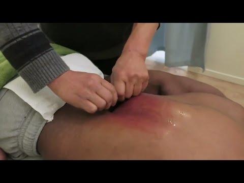 Mi a 3 stádiumú magas vérnyomás
